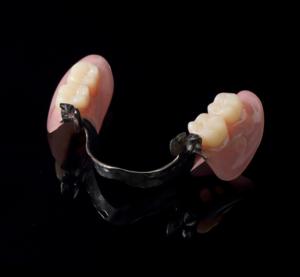 ばねのある入れ歯(保険治療)